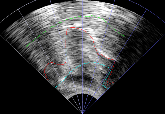 ultrasound_imaging
